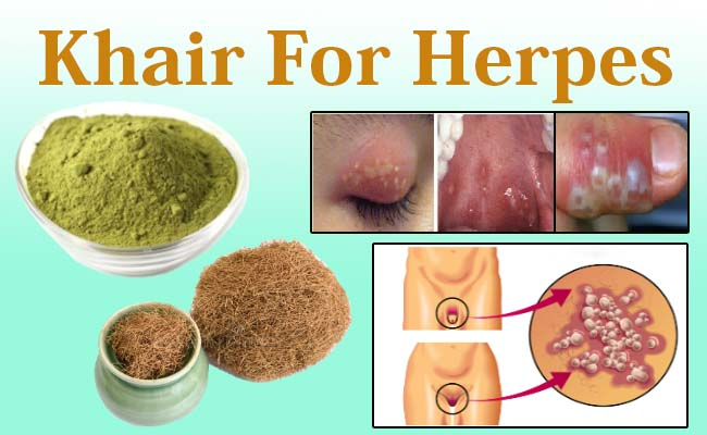 khair for herpes