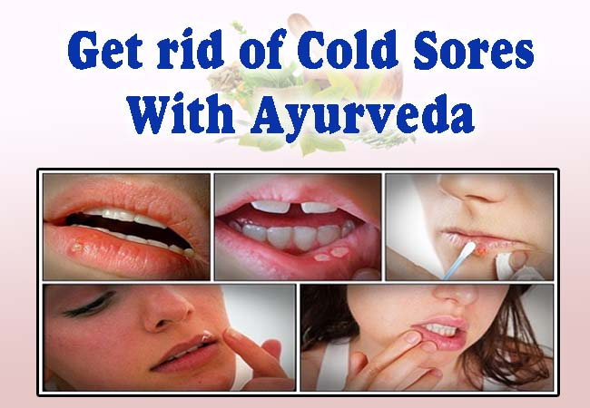 get rid of cold sores with Ayurveda