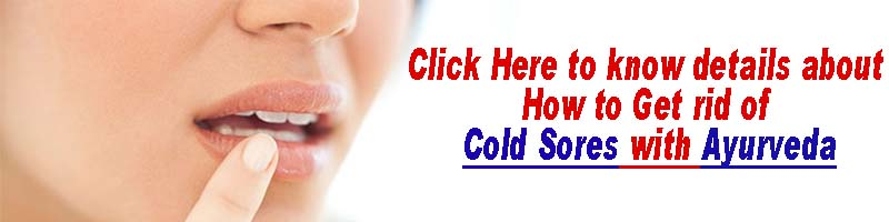 how to get rid of cold sores with Ayurveda