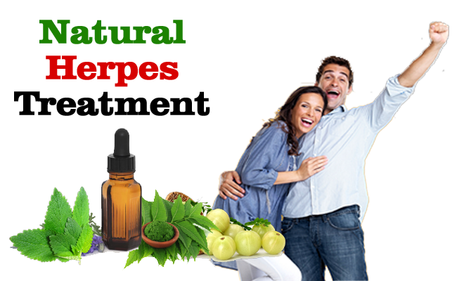 natural herpes treatment
