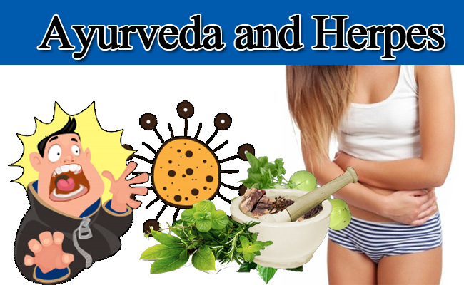 ayurveda and herpes