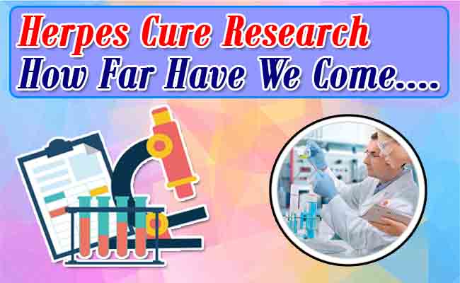 herpes-cure-research-how-far-have-we-come